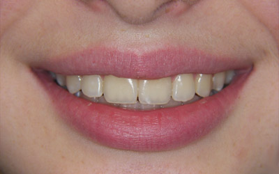 traitement orthodontique