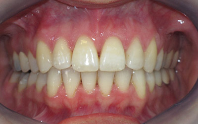 invisalign cas clinique