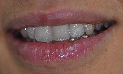 invisalign orthodontie invisible